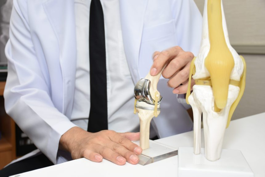 Should I Get a Knee Replacement?